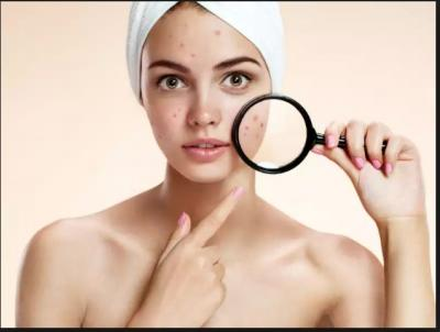 Best Home Remedies to Remove Scars, Marks and Spots to enhance the beauty