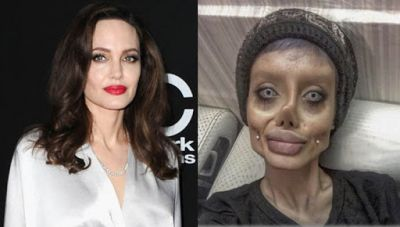 OMG! This girl tried 50 surgeries to look like Angelina Jolie