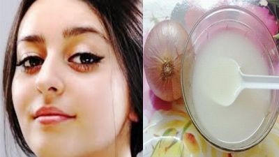 Facial scars wll remove with Onion juice