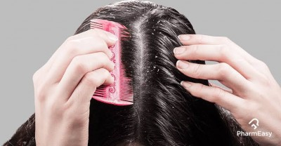 Home remedies to get rid of dandruff instantly
