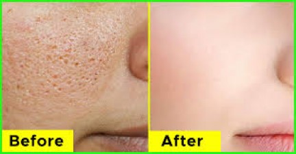 Summer increase open pores problem, treat it well with these tips