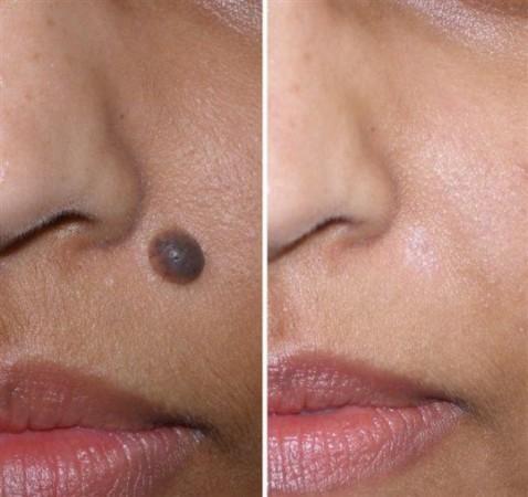 किसी भी चिकित्सा सर्जरी के बिना घर पर ही हटाए चेहरे से टिल का निशान