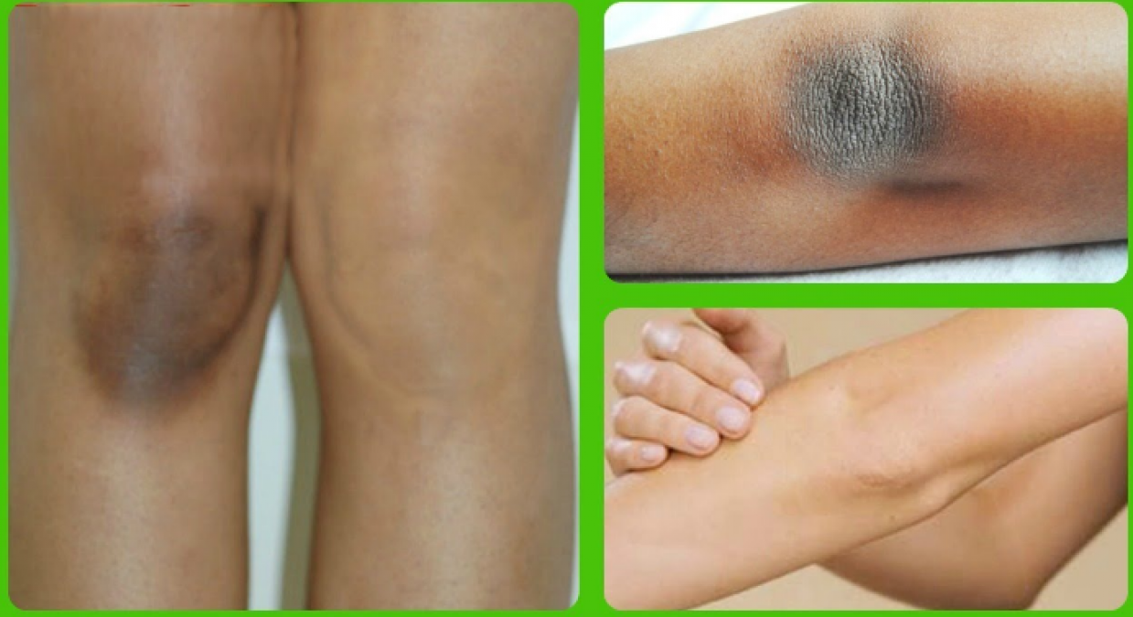 Effective and best remedies to lighten your elbow and knee