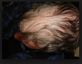Hair Fall: Some important reasons may cause Hair fall