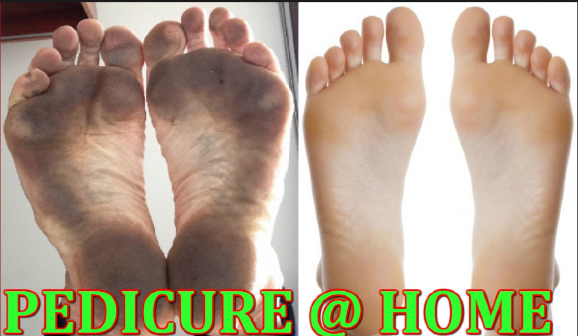 Get Pedicure at home with these simple and easy steps