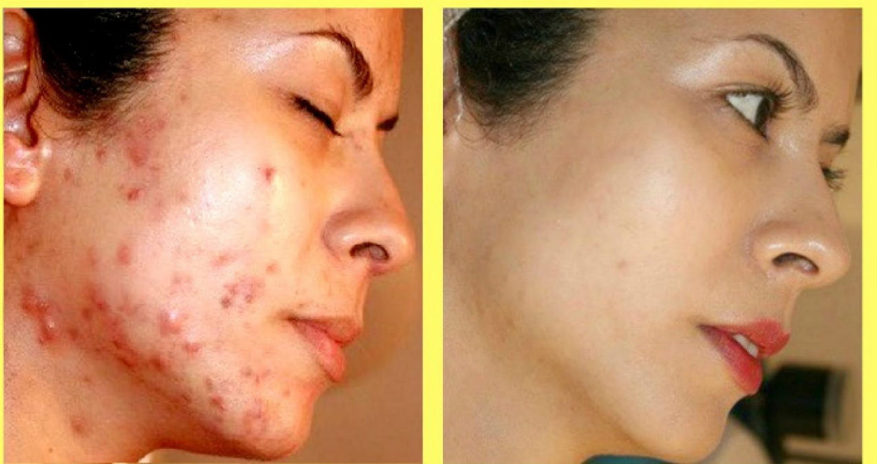Get rid off your acne and scars with these DIY home remedies