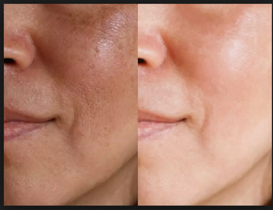 Close your open pores in Skin and enhance your beauty