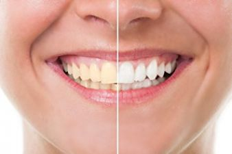 2 pinch of salt will shine your tooth like a pearl, just use it like this
