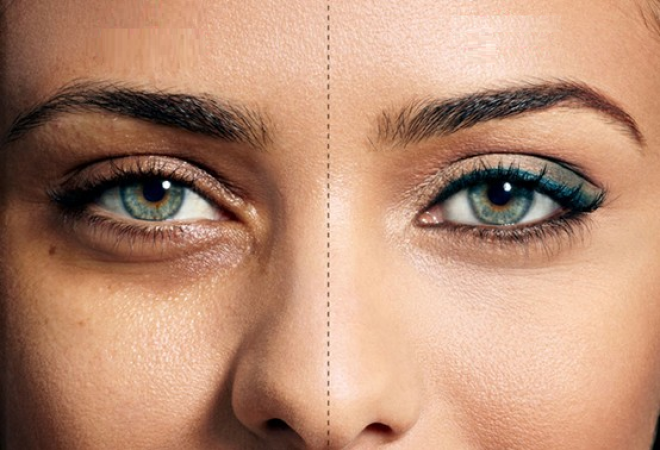 3 remedies to keep your skin under the eye healthy