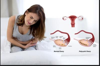 Ovarian cysts or PCOD is growing disease among young girl; Symptoms, causes and treatment