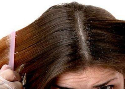Make this anti-dandruff shampoo at home and get rid of hair problems