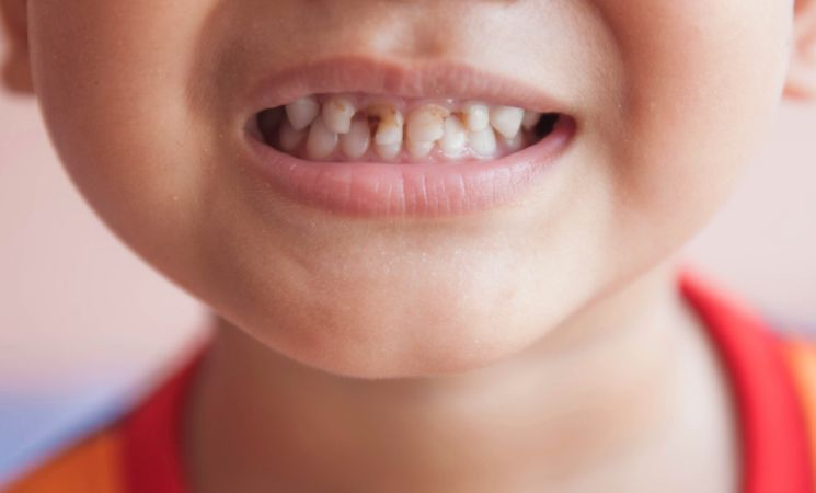 Overuse of toothpaste may leads to tooth decay in children