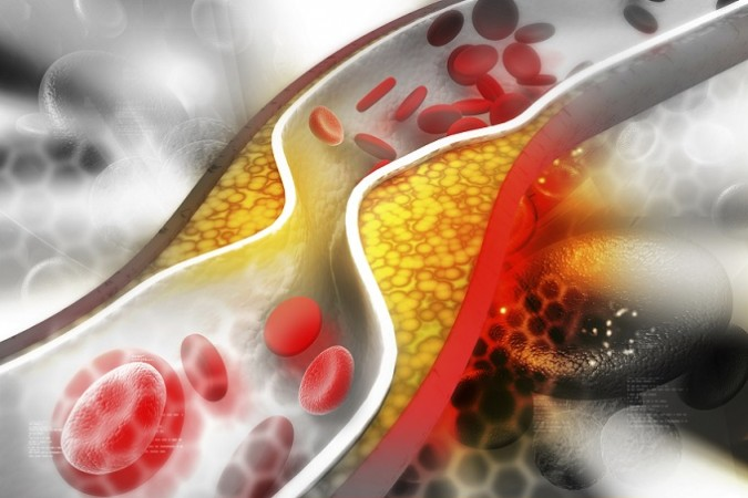 Healthy Lifestyle help improve your cholesterol - News Track English