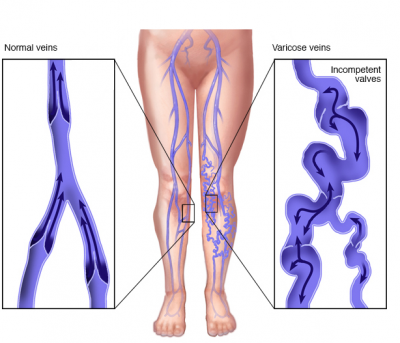 Varicose Veins: 4 causes and11 symptoms
