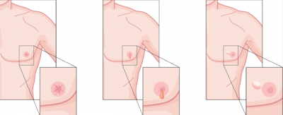 Do you know men can also be a sufferer of Breast Cancer?