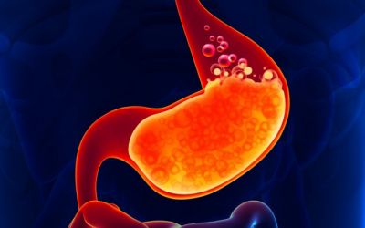 6 Tips to reduce stomach acid