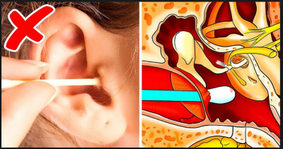 Safe and effective home remedies to remove Earwax