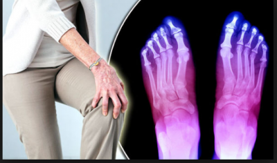 Cure Arthritis Joint Pain at home by these simple tips