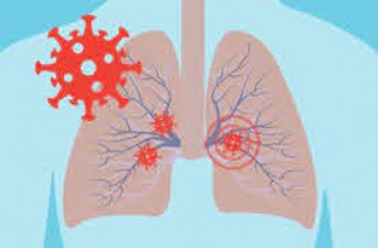 Lungs take 3 months to recover well after Covid recovery, Study