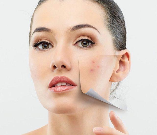 तेलिया त्वचा और मुंहासे का शानदार इलाज