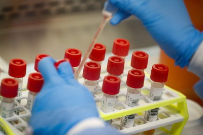 1200 samples sent from Bhopal to Delhi for test