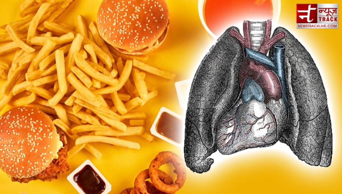 National Junk Food Day: आज ही जंक फ़ूड से ले लो सन्यास वरना शरीर का हो जाएगा सर्वनाश