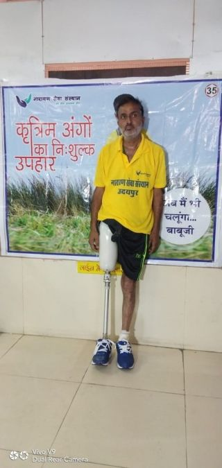 Narayan Seva Sansthan Launched Free Artificial Limb Distribution Camp