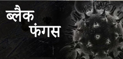 Black fungus becomes even more deadly in Delhi, 89 killed so far