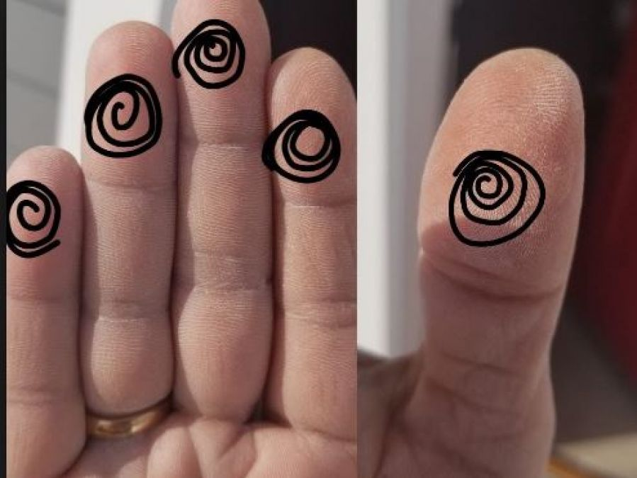 If your thumb has such a mark then you're going to be rich soon!