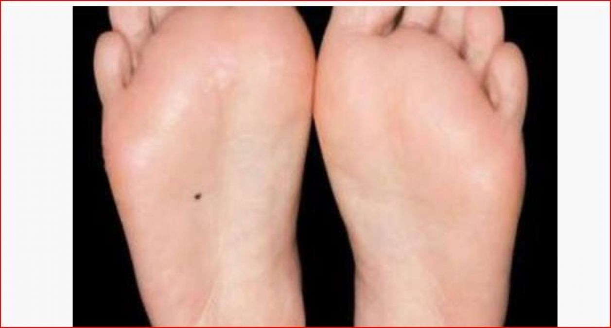 If you have these mark in your body parts, then your luck is going to change