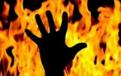 Woman beat husband and then sets him on fire, know the matter