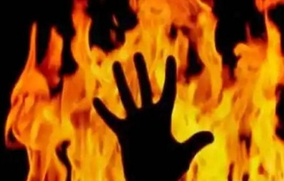 Young man set his uncle on fire due to money matters