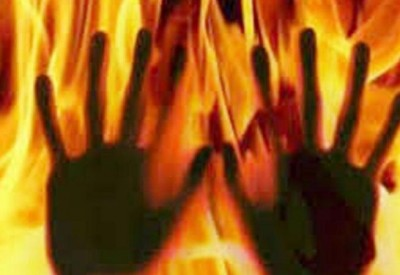 Husband sets wife on fire  alive due to illicit ties, registers case