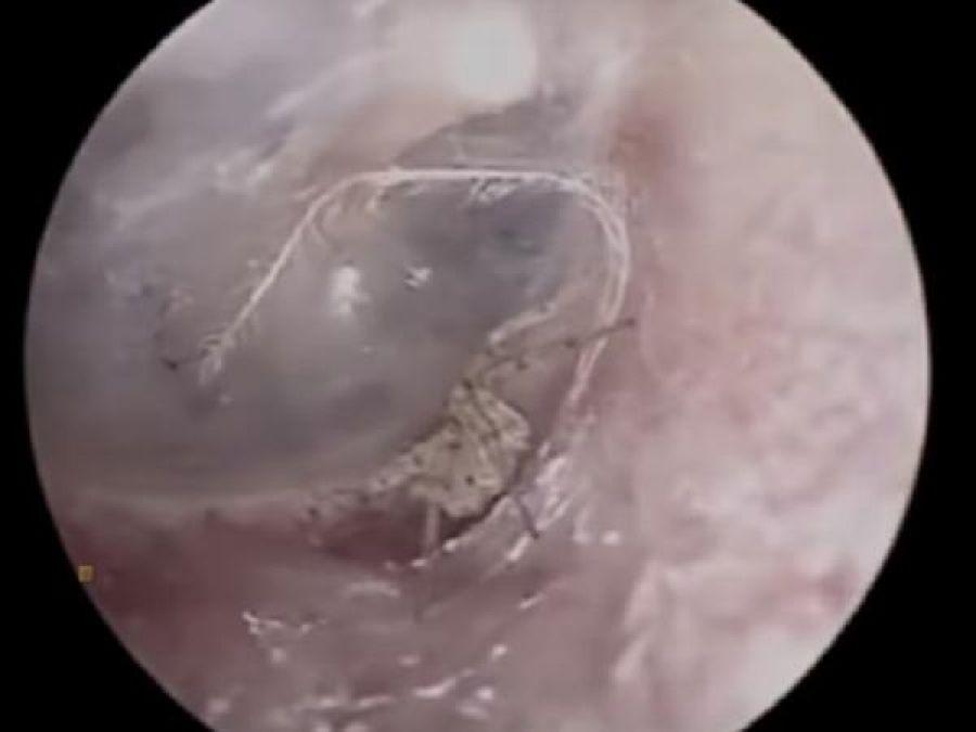Watch: Doctors find spider weaving webs inside a man's ear