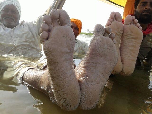 खंडवा में जल सत्याग्रहियों के पैरों से रिसने लगा खून