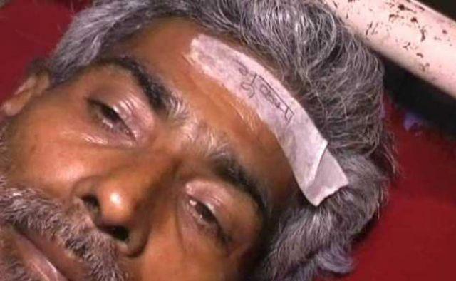 बिहार के अस्पताल में भूकंप में चोटिल लोगो के माथे पर चिपकाया