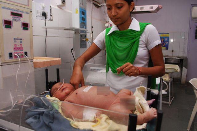 देश के सबसे वजनी बच्चे ने लिया जन्म, तस्वीर देखकर हो जाएंगे हैरान