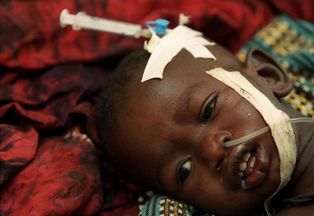 मलेरिया से मर रहे है रोज 1200 बच्चे : UNICEF