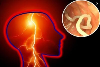 Doctors found more than 700 tapeworms in a man's body