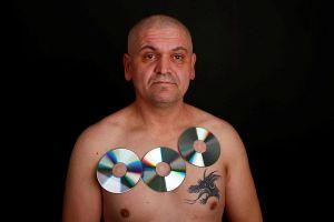 ये है Magnetic Man जिसके शरीर पर चिपक जाती हैं कई चीज़े