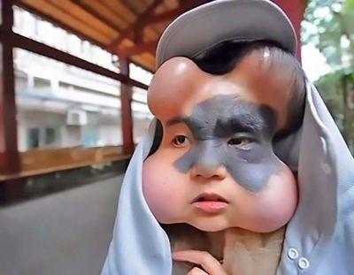 इस लड़की के चेहरे में लगाए चार गुब्बारे वजह जानकर चौक जाएंगे आप