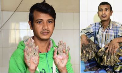 Bangladesh's 'tree man' wants hands amputated: Everything to know about the rare disease
