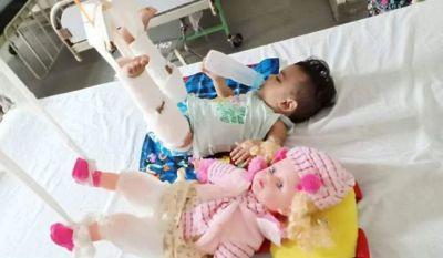 11 माह की बच्ची के साथ उसकी गुड़िया को भी चढ़ाया प्लास्टर, जानिए ऐसा क्यों ?
