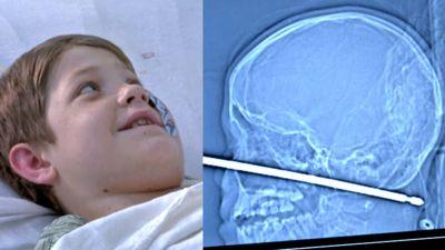 गाल को चीरते हुए बच्चे के सिर में घुसी लोहे की छड़, ऐसे बची जान