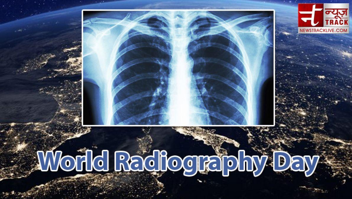 जानिए क्यो मनाया जाता है विश्व रेडियोग्राफी दिवस, आधुनिक तकनीक ने दी बड़ी सुविधा